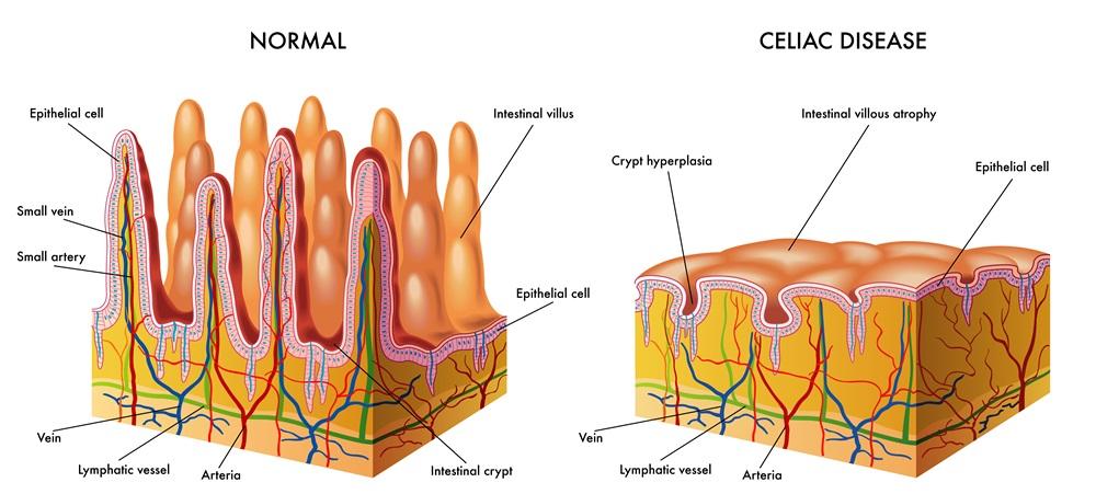 Dettaglio disturbo della celiachia