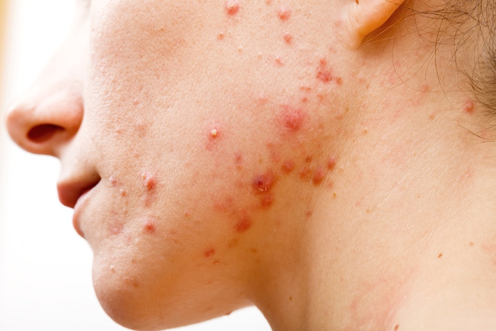 Acne in viso