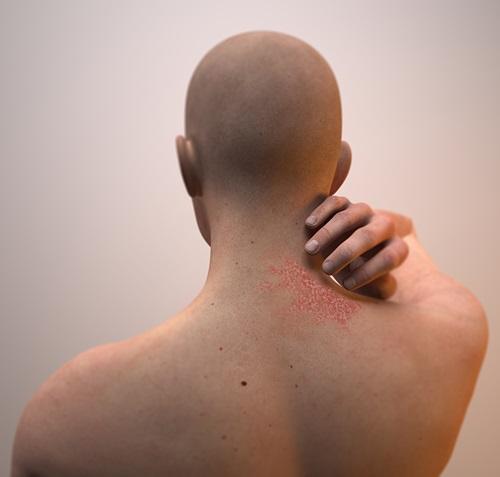 Dermatite seborroica patologia
